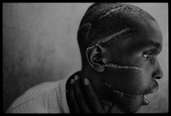 rwanda_scarred-man_01.jpg